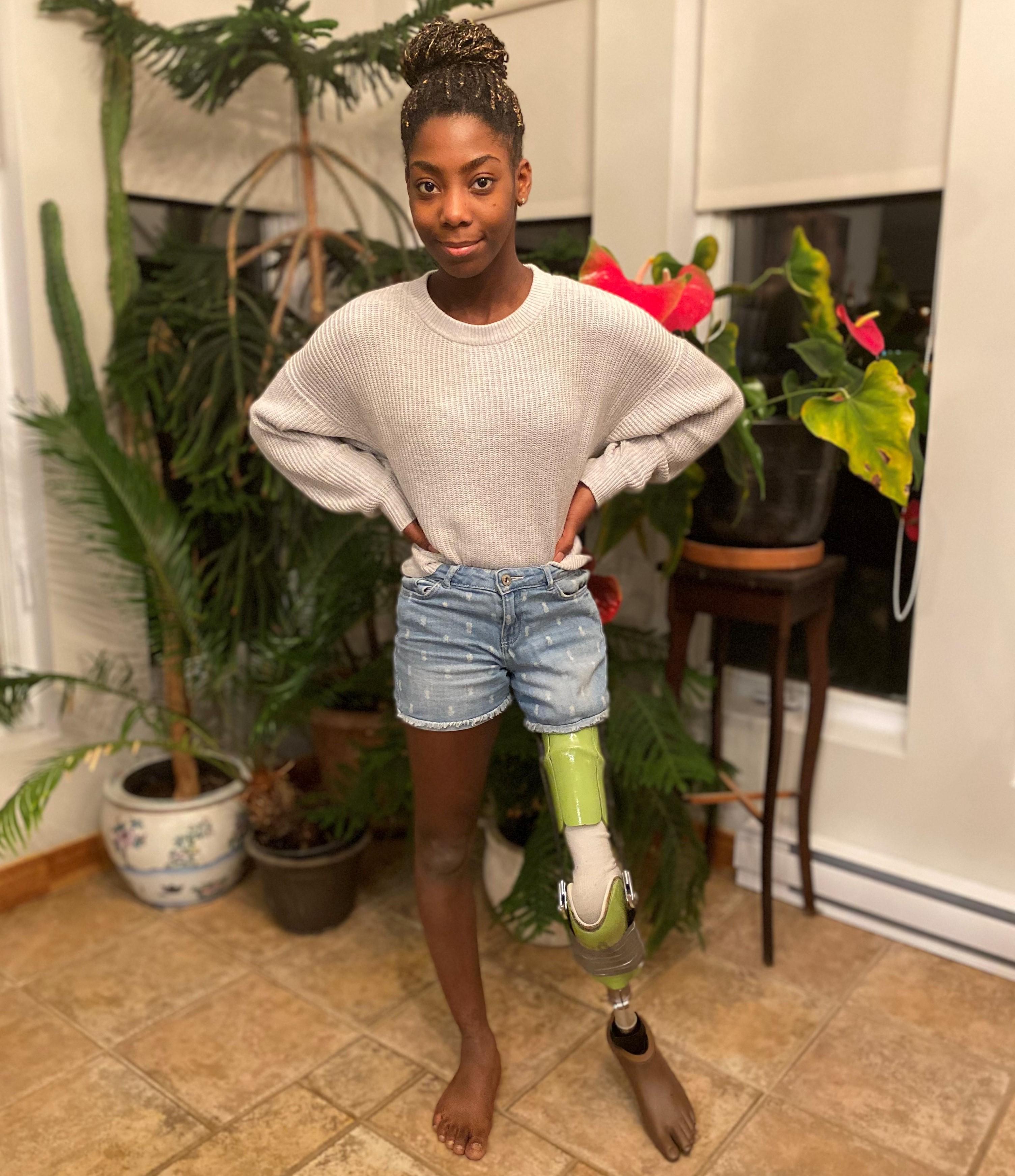 Samyra Duchesne a été amputée de la jambe gauche à l'âge de sept ans. Depuis, elle a une vie active avec sa prothèse.