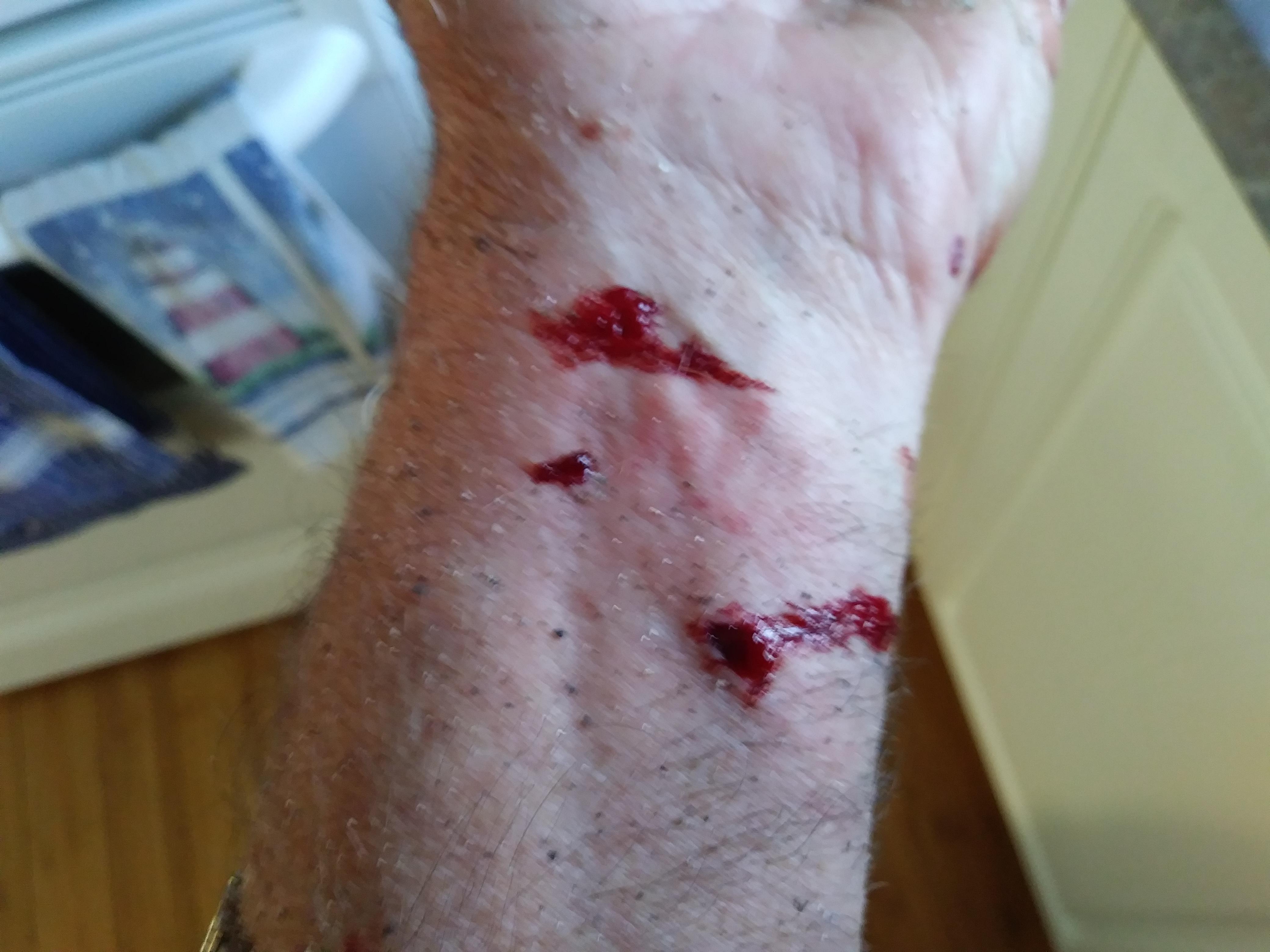 M. Rivest a subi d'autres blessures au bras gauche.